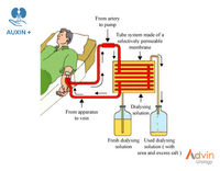 Dry Citrato de hemodiálise Concentrate -