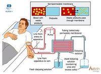 A hemodiálise pó seco -