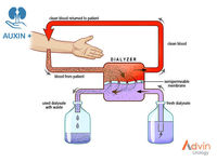 Fluid hemodiálise -